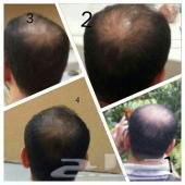 تساقط الشعر وإنباته خلال اسبوعين صنع ماليزي كورى
