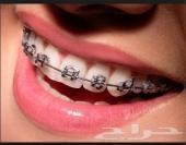 عروض تقويم الاسنان باقل الاسعار لفترة محدودة